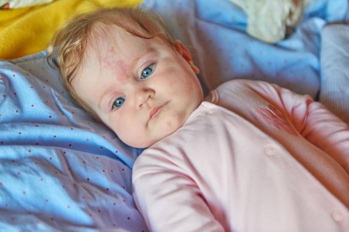 Сыпь после бассейна у ребенка фото с пояснениями